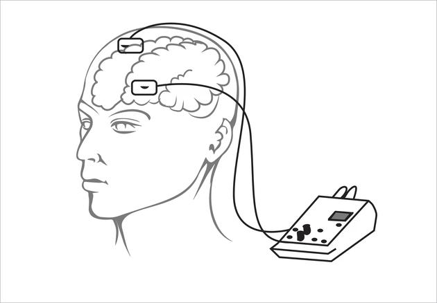 """他们的身体与两个电极和 1 个 9 伏电池相连,电极对他们的大脑进行不到 1 分钟的电击。接下来他们没有被电击,这种叫做""""模拟刺激""""的装置是为了向测试者暗示当他们被电击时已习惯了这种刺激。"""