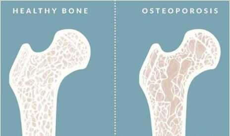 骨质 .JPG
