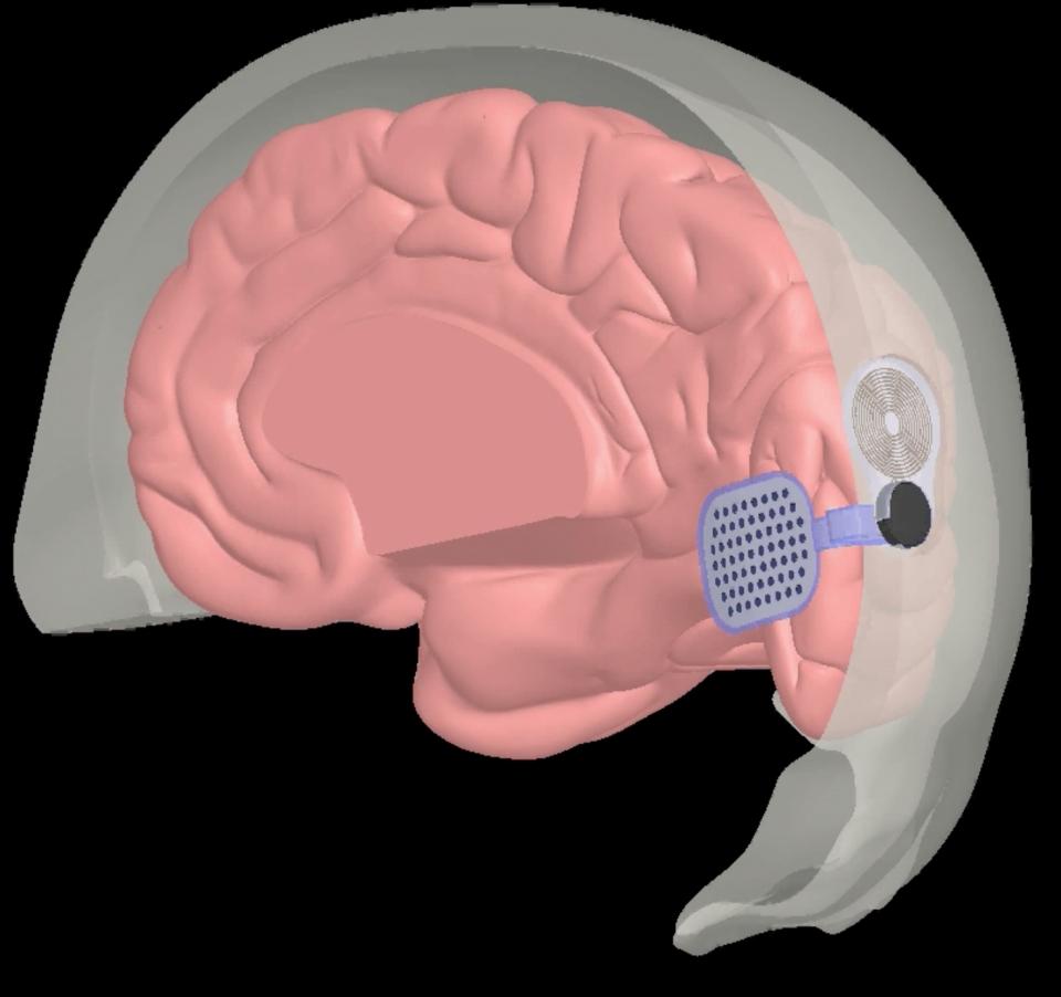 科学家发明大脑植入物,可以让盲人重见光明