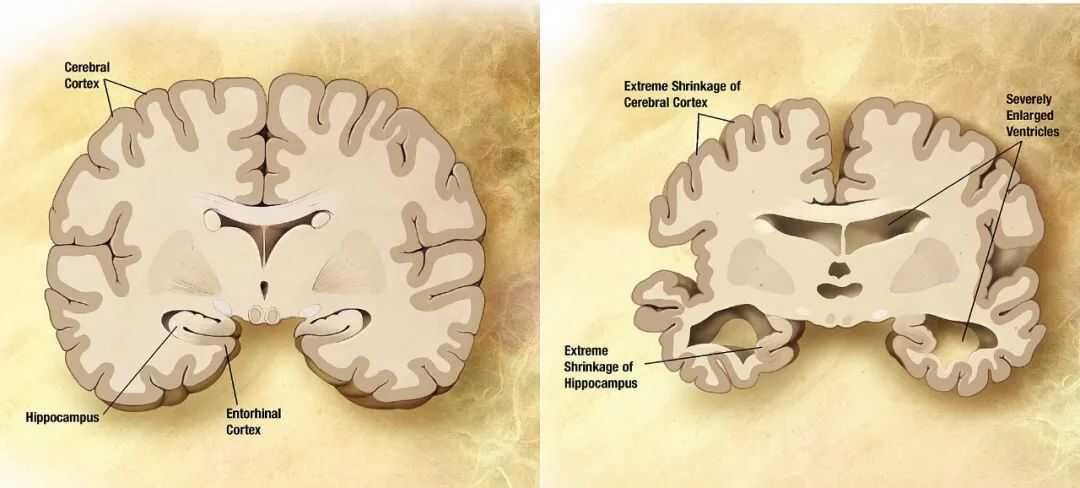 正常老年人的大脑(左)与阿尔茨海默病患者的大脑(右)的比较(来源:维基百科)